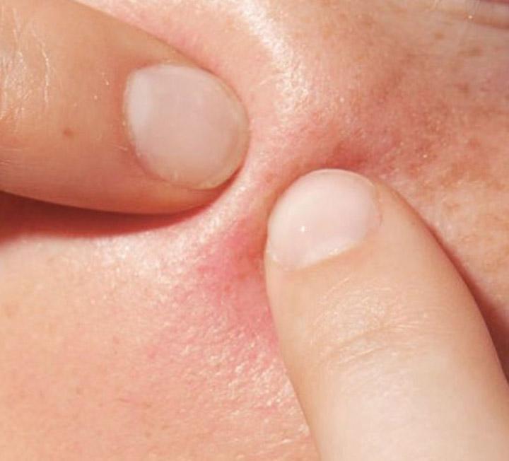 피부과 전문의 안잘리 마토 박사가 전한 블랙헤드 공략법 ::블랙헤드, 피부관리, 마스크팩, 필링, 각질제거, 피부케어, 코스모폴리탄, COSMOPOLITAN